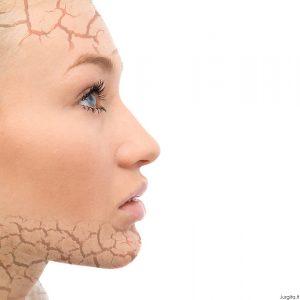 Kasdienės odos problemos. Kaip kovoti?