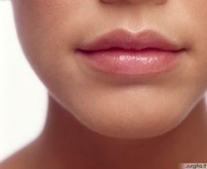 Naudingi lūpų priežiūros patarimai žiemai